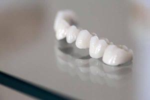 How Long Should Dental Crowns Last | Dentist Buderim
