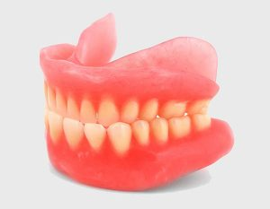 Tooth Replacement Options in Buderim
