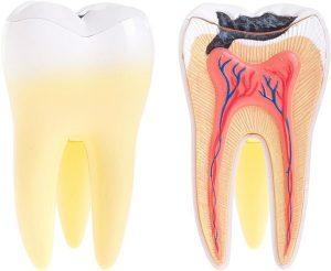 Tooth Decay Treatment | Dentist Budrim